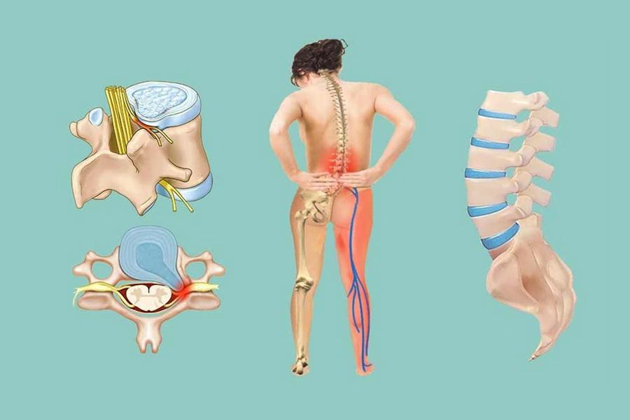нехирургическая терапия поясничной грыжи